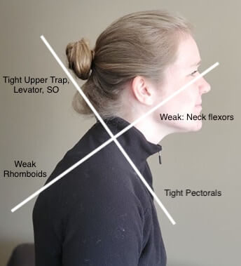 Upper Crossed Syndrome Poor Posture at Desks and Device use